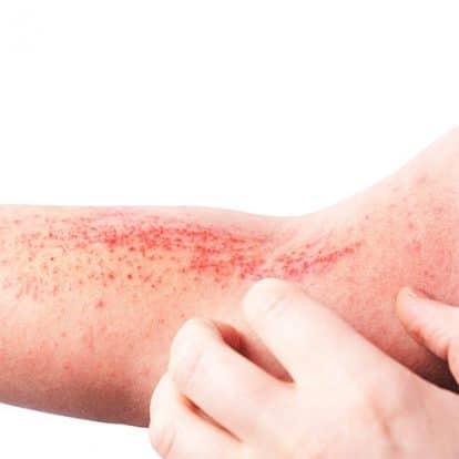 Atopic-Dermatitis