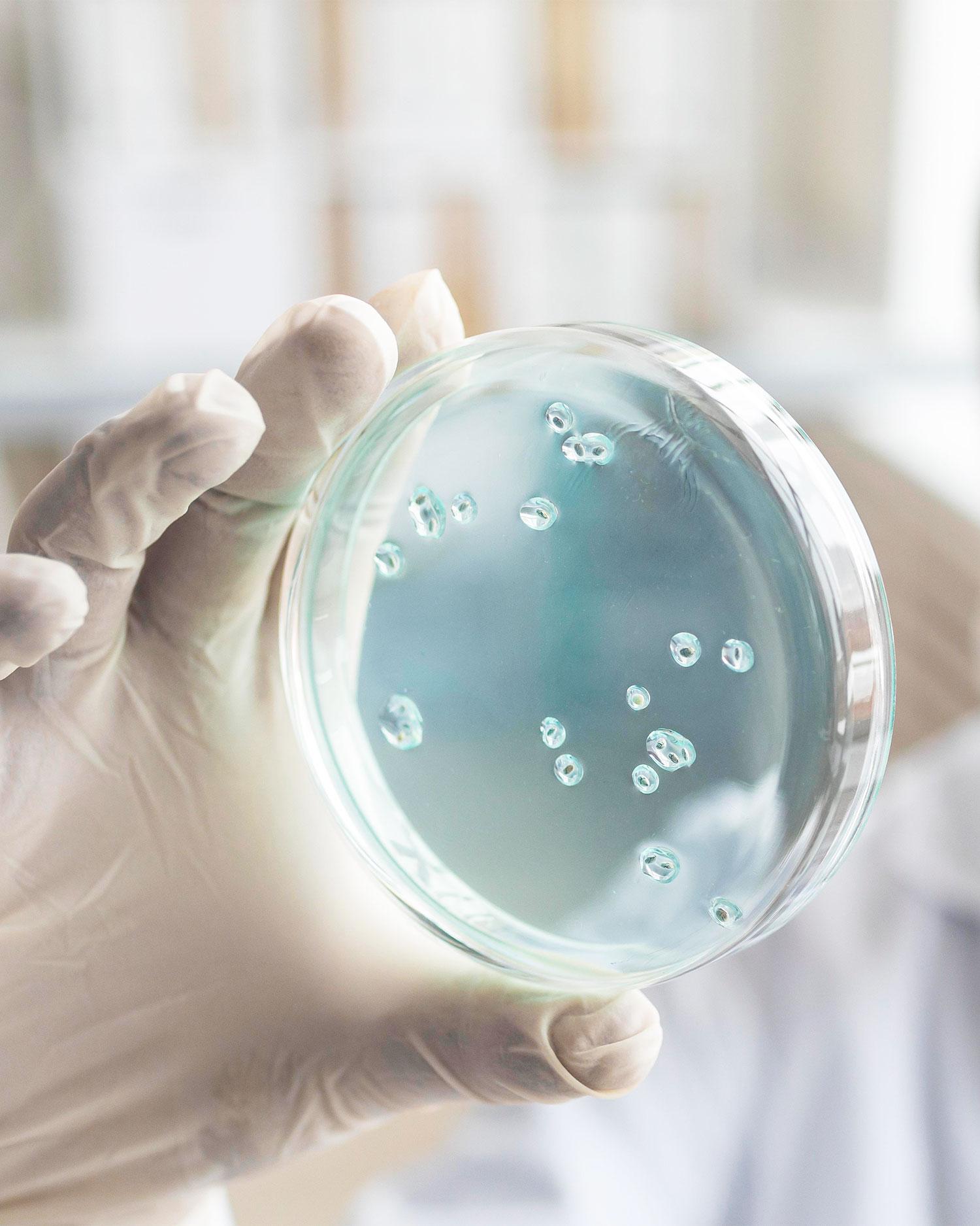 Bacteriële onbalans 2_RS